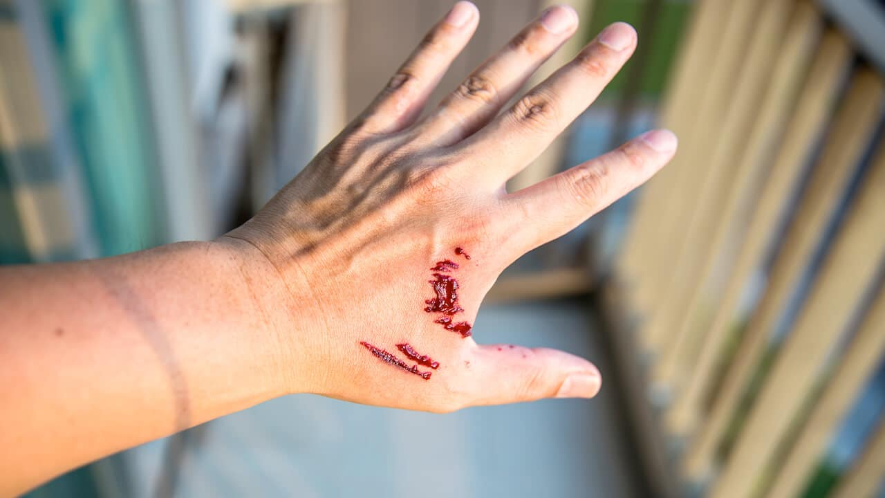 When Should I Worry About a Dog Bite?