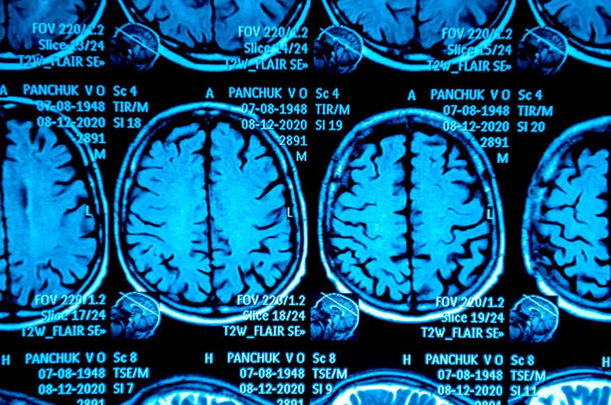 orange county traumatic brain injury lawyer